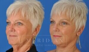 tjelmeland-meridian-austin-brow-lift-patient-8-2