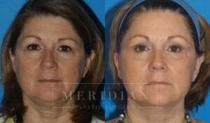 tjelmeland-meridian-austin-eyelid-lift-patient-1-1