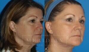 tjelmeland-meridian-austin-eyelid-lift-patient-1-2