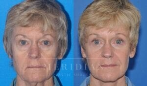 tjelmeland-meridian-austin-eyelid-lift-patient-2-1