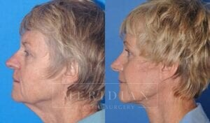tjelmeland-meridian-austin-eyelid-lift-patient-2-2