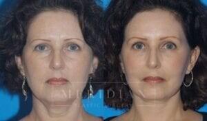 tjelmeland-meridian-austin-eyelid-lift-patient-3-1
