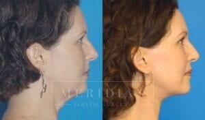 tjelmeland-meridian-austin-eyelid-lift-patient-3-2