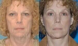 tjelmeland-meridian-austin-eyelid-lift-patient-4-1