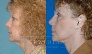 tjelmeland-meridian-austin-eyelid-lift-patient-4-2