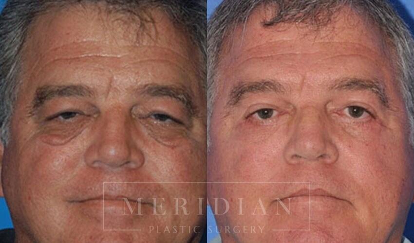 tjelmeland-meridian-austin-eyelid-lift-patient-5-1