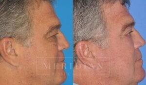 tjelmeland-meridian-austin-eyelid-lift-patient-5-2