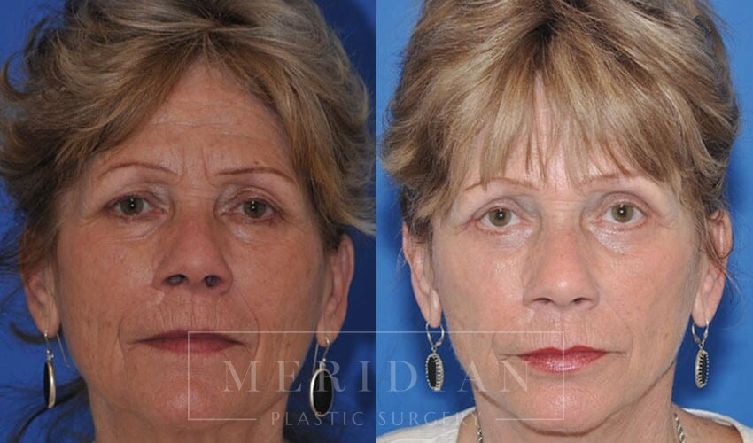tjelmeland-meridian-austin-eyelid-lift-patient-6-1