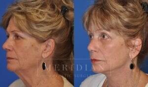tjelmeland-meridian-austin-eyelid-lift-patient-6-2