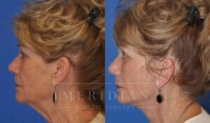 tjelmeland-meridian-austin-eyelid-lift-patient-6-3