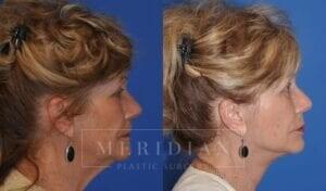 tjelmeland-meridian-austin-eyelid-lift-patient-6-4