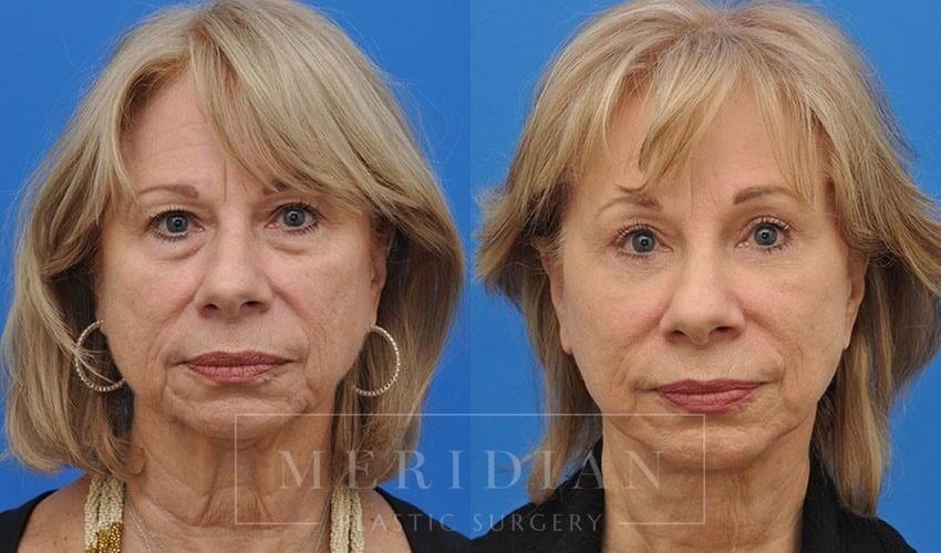 tjelmeland-meridian-austin-eyelid-lift-patient-7-1