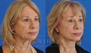tjelmeland-meridian-austin-eyelid-lift-patient-7-2