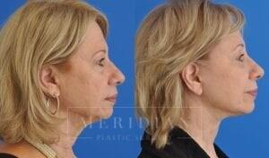 tjelmeland-meridian-austin-eyelid-lift-patient-7-3