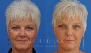 tjelmeland-meridian-austin-eyelid-lift-patient-8-1