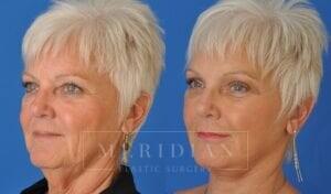 tjelmeland-meridian-austin-eyelid-lift-patient-8-2