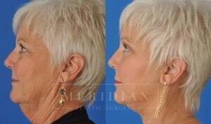 tjelmeland-meridian-austin-eyelid-lift-patient-8-3