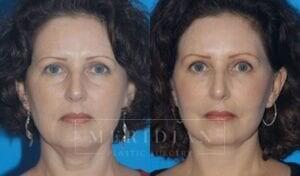 tjelmeland-meridian-austin-facelift-patient-1-1