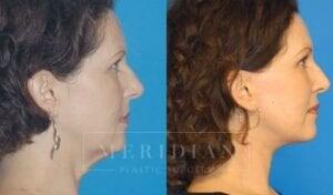 tjelmeland-meridian-austin-facelift-patient-1-2