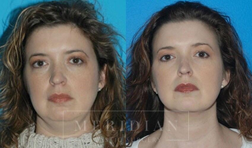 tjelmeland-meridian-austin-facelift-patient-10-1