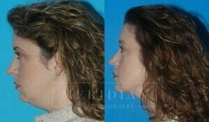 tjelmeland-meridian-austin-facelift-patient-10-2