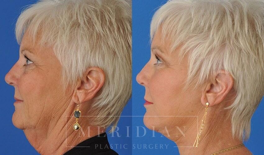 tjelmeland-meridian-austin-facelift-patient-14-3