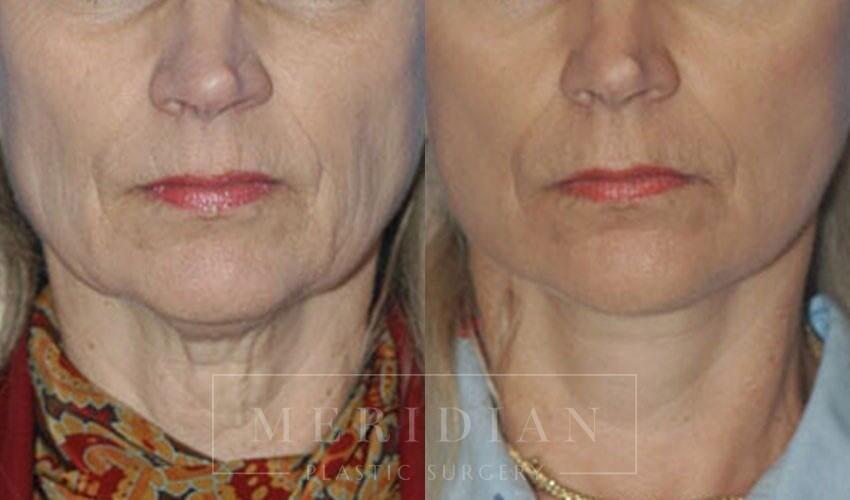 tjelmeland-meridian-austin-facelift-patient-2-1