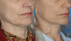 tjelmeland-meridian-austin-facelift-patient-2-2