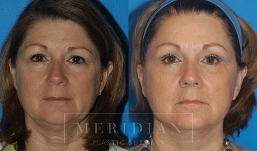 tjelmeland-meridian-austin-facelift-patient-3-1