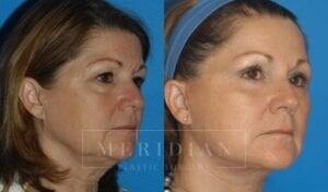 tjelmeland-meridian-austin-facelift-patient-3-2