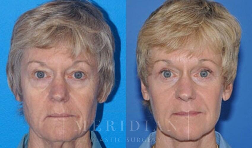 tjelmeland-meridian-austin-facelift-patient-4-1