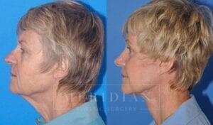 tjelmeland-meridian-austin-facelift-patient-4-2