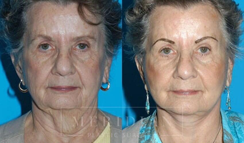 tjelmeland-meridian-austin-facelift-patient-5-1