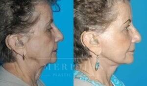 tjelmeland-meridian-austin-facelift-patient-5-2