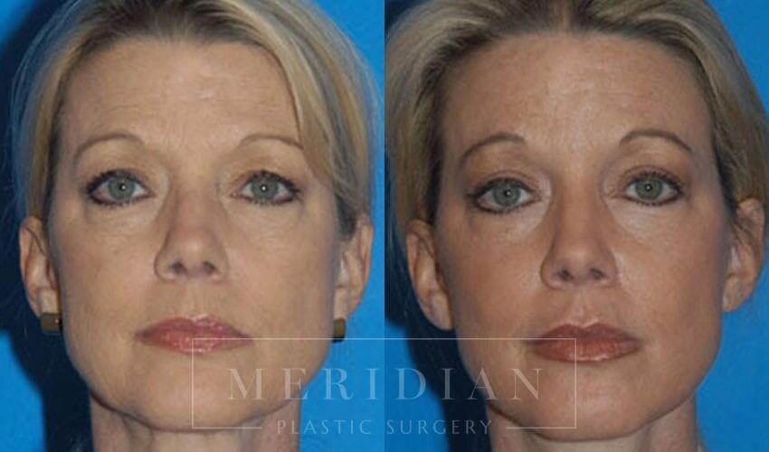 tjelmeland-meridian-austin-facelift-patient-6-1