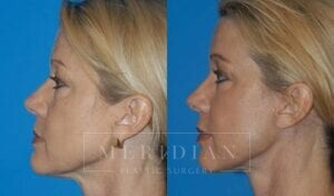 tjelmeland-meridian-austin-facelift-patient-6-2