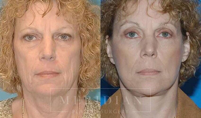 tjelmeland-meridian-austin-facelift-patient-7-1