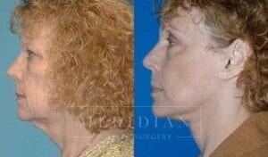 tjelmeland-meridian-austin-facelift-patient-7-2