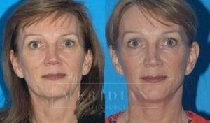 tjelmeland-meridian-austin-facelift-patient-8-1