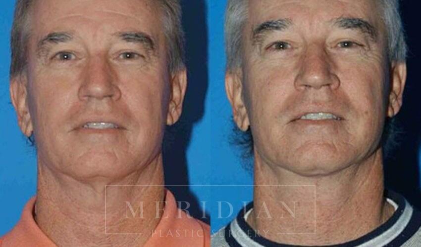 tjelmeland-meridian-austin-facelift-patient-9-1