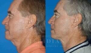 tjelmeland-meridian-austin-facelift-patient-9-2