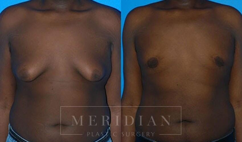 tjelmeland-meridian-austin-gynecomastia-patient-1-1