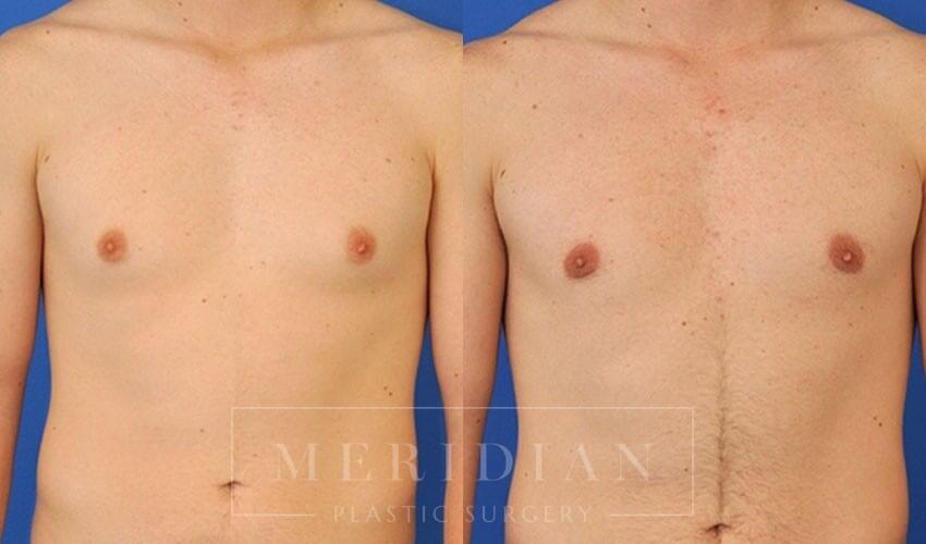 tjelmeland-meridian-austin-gynecomastia-patient-2-1