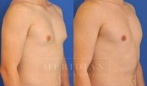 tjelmeland-meridian-austin-gynecomastia-patient-2-2