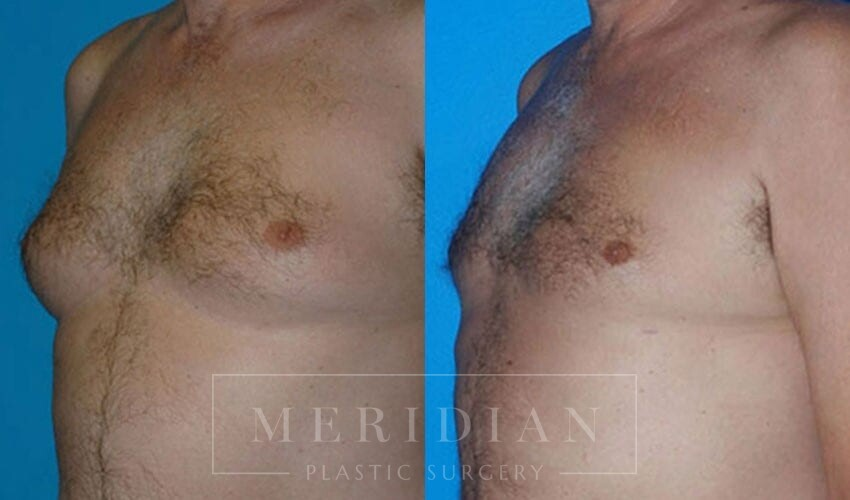 tjelmeland-meridian-austin-gynecomastia-patient-3-1