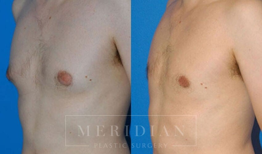 tjelmeland-meridian-austin-gynecomastia-patient-4-1