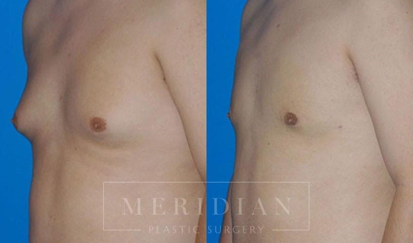 tjelmeland-meridian-austin-gynecomastia-patient-5-1