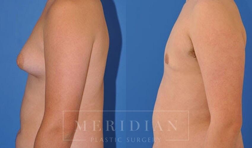 tjelmeland-meridian-austin-gynecomastia-patient-6-2