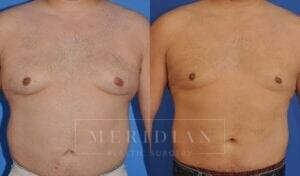 tjelmeland-meridian-austin-gynecomastia-patient-7-1