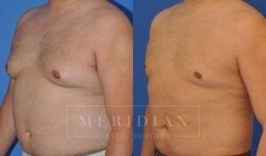 tjelmeland-meridian-austin-gynecomastia-patient-7-2